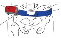 図3骨盤傾斜角センサーと骨盤